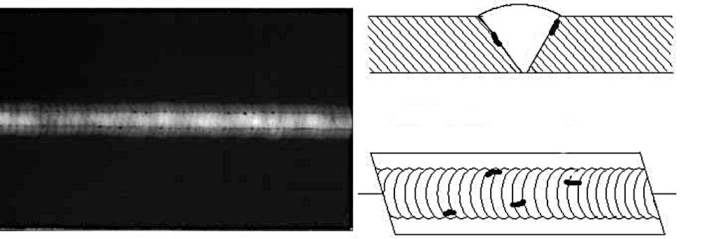 Неполное плавление рентгеновский снимок
